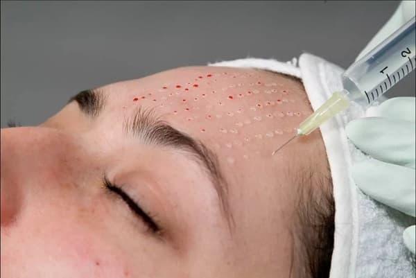 Процедуры для кожи лица_инъекционные