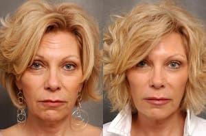 До и после3_инъекции красоты