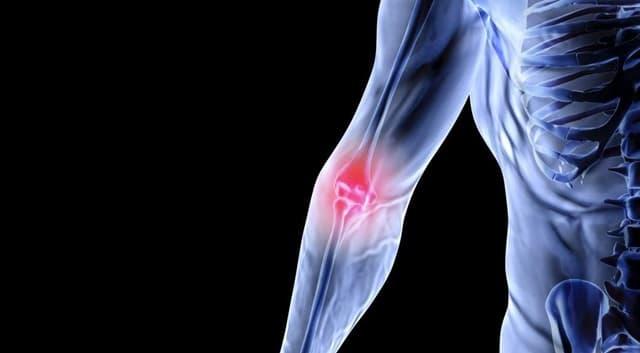Преимущества МРТ локтевого сустава