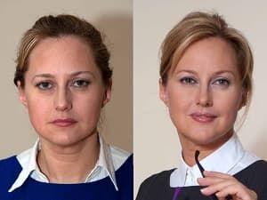 До и после4_инъекции красоты