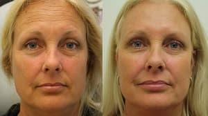До и после2_инъекции красоты