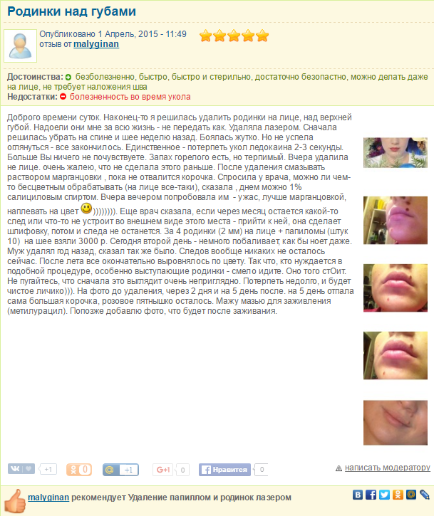 Как удаляют папилломы в горле